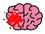 脳出血の初期症状
