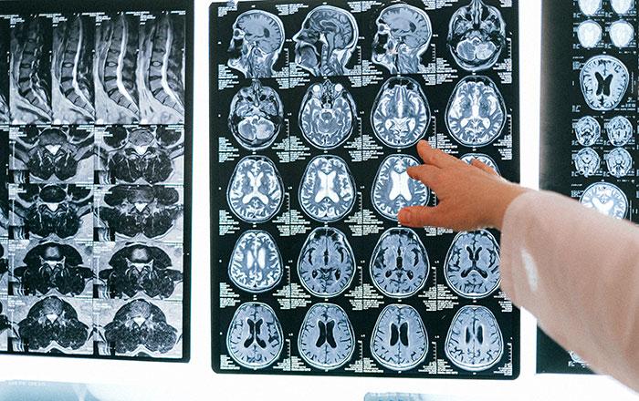 脳のMRI写真