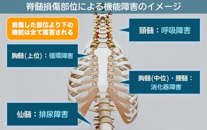 機能障害イメージ図