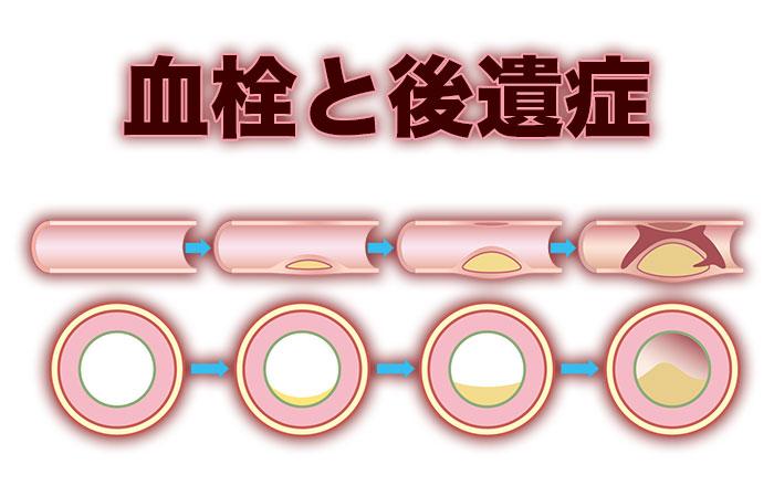 血栓と後遺症